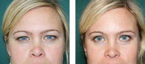 3- عمل جراحی پلک (Blepharoplasty)
