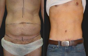 4- ابدومینوپلاستی (Abdominoplasty)