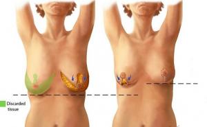 5- کوچک کردن سینه (Breast Reduction)