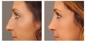 6- رینوپلاستی یا عمل زیبایی بینی (Rhinoplasty)
