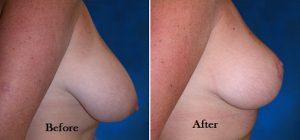 8- لیفت سینه یا پستان (Breast Lift)