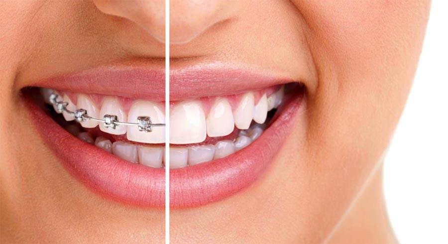 بهترین متخصص ارتودنسی دندان