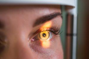 تشخیص و درمان ملانوم چشم