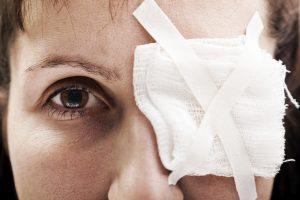 ملانوم چشم یا ocular melanoma