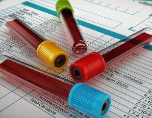 در آزمایش خون چه فاکتورهایی را مورد بررسی قرار میدهند؟
