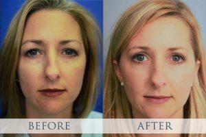 قبل و بعد جراحی پلک یا بلفاروپلاستی