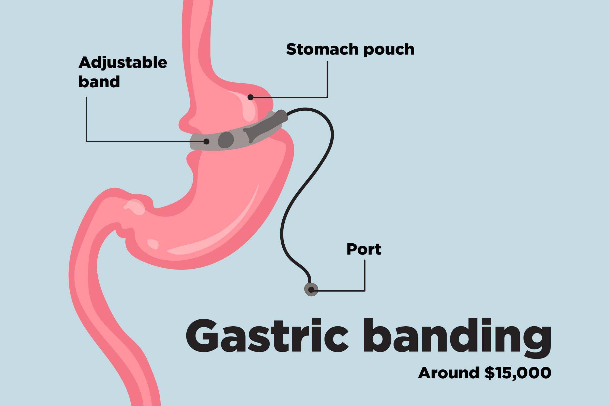عمل باندینگ معده جراح لاغری