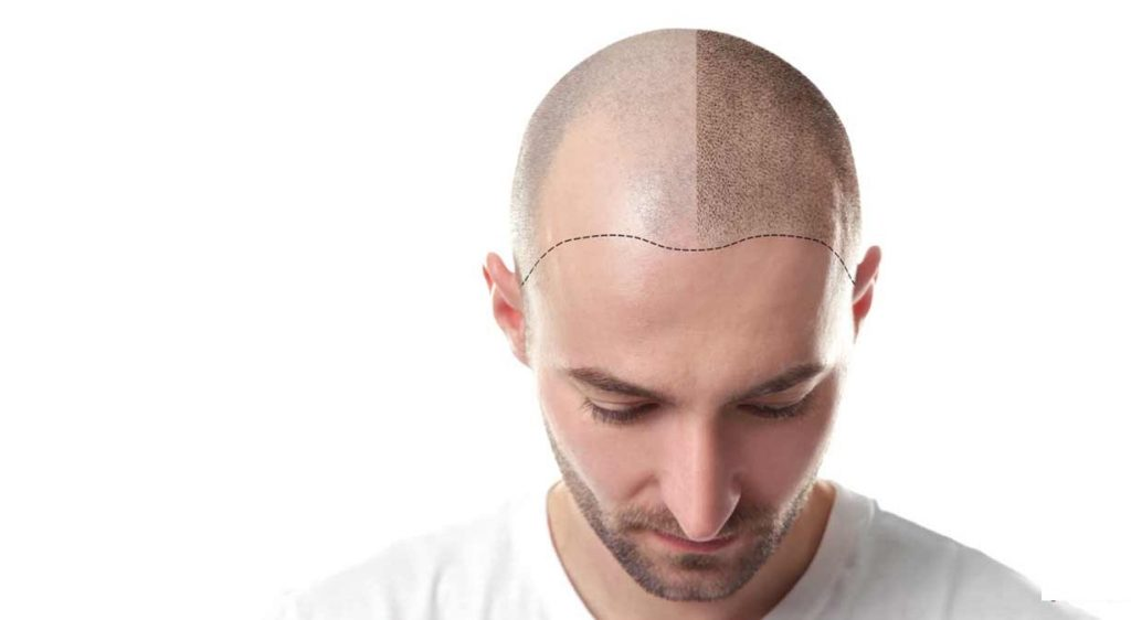 مشاوره با یک متخصص کاشت مو