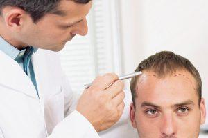 چگونه یک متخصص کاشت مو خوب پیدا کنیم؟