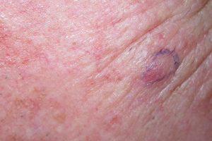 کارسینوم سلول مرکل (MCC) چیست؟