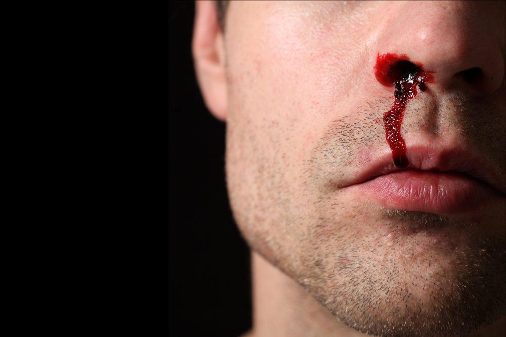 چه وقت خون دماغ شدن یا خونریزی از بینی اورژانسی محسوب می شود