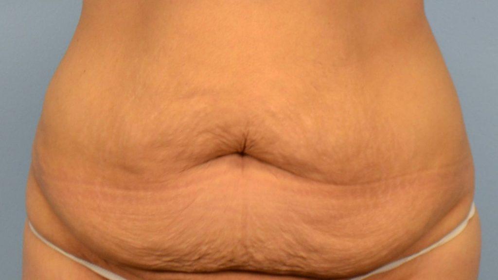 1 . عمل جراحی تامی تاک برای پوست شکم سست و شل شده