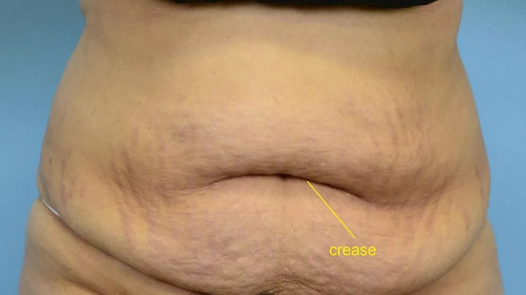 1-عمل جراحی تامی تاک برای پوست شکم سست و شل شده