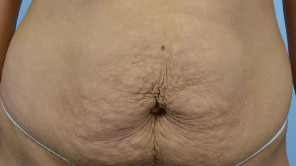 5 . چروک شدن پوست شکم خصوصا در اطراف ناف