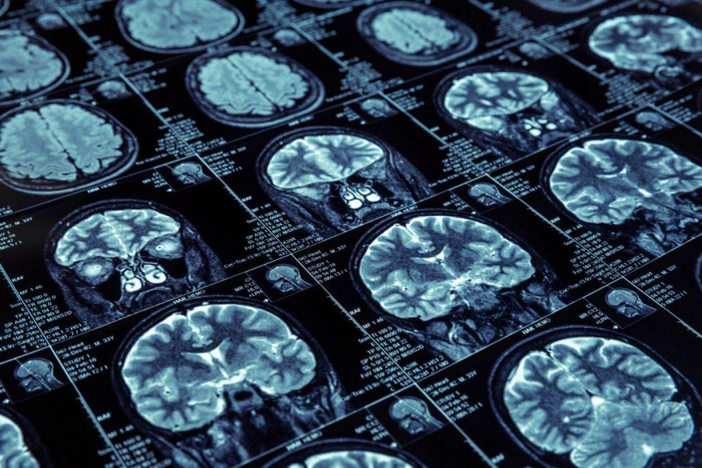 متخصص رادیولوژی بالینی کیست و چه کاری برای بیمار انجام میدهد؟