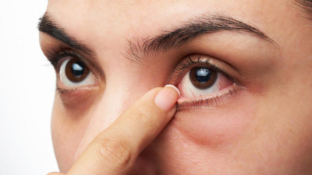 چگونه علت خارش شبانه چشم تشخیص داده میشود؟