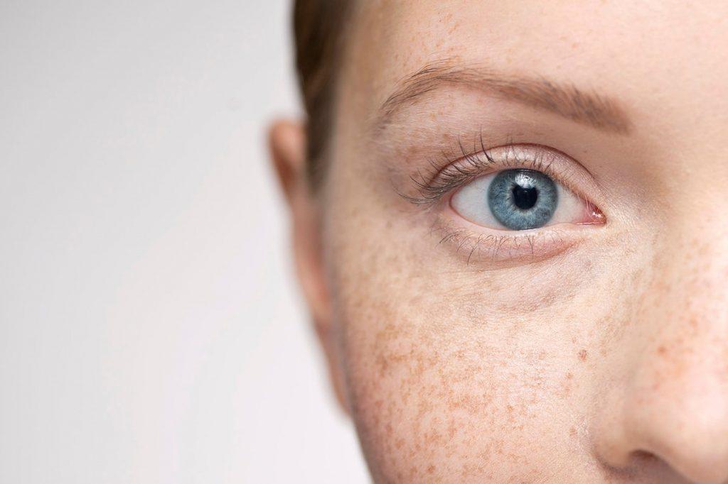 خارش شبانه چشم - علت خارش چشم در شبها چیست؟