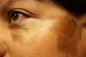 مورفه آ بیماری خطرناکی که پوست را درگیر میکند