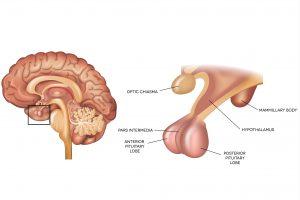 تومور هیپوفیز چه تغییراتی در بدن ایجاد میکند؟