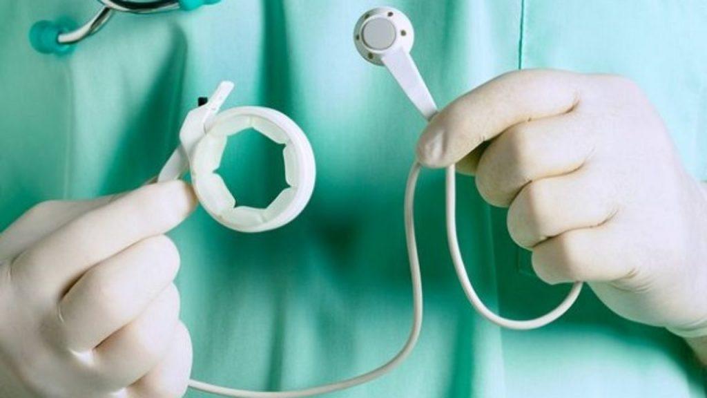 لاغری با انجام عمل جراحی باندینگ یا حلقه معده