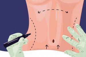 هرآنچه که باید درباره عمل جراحی تامی تاک یا ابدومینوپلاستی بدانید
