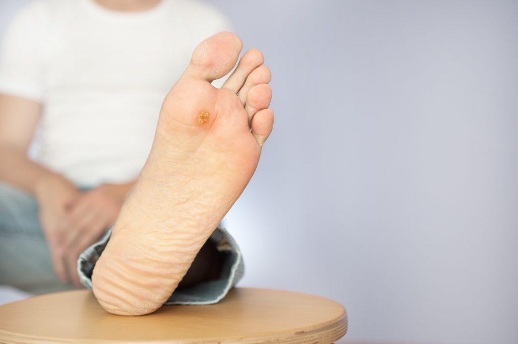 پای دیابتی، دیابت چه بلایی بر سر پاهای شما میآورد؟
