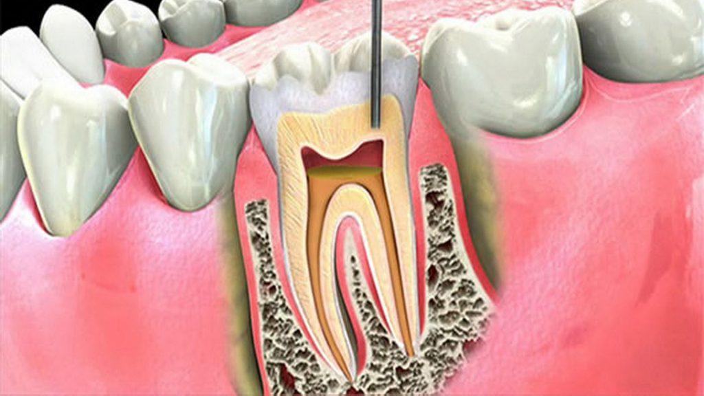 تفاوت یک اندودنتیست با دندانپزشک چیست؟