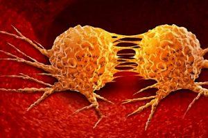 هرآنچه که باید درباره متاستاز سرطان های مختلف بدانید (بخش دوم)
