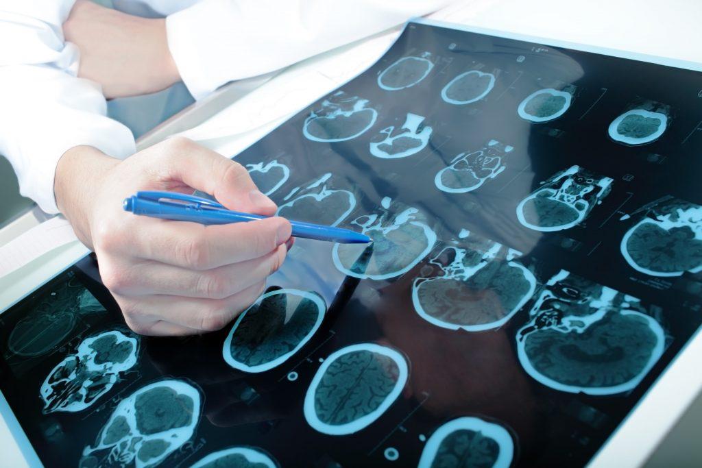 نوروسایکولوژیست یا عصب روانشناس کیست؟