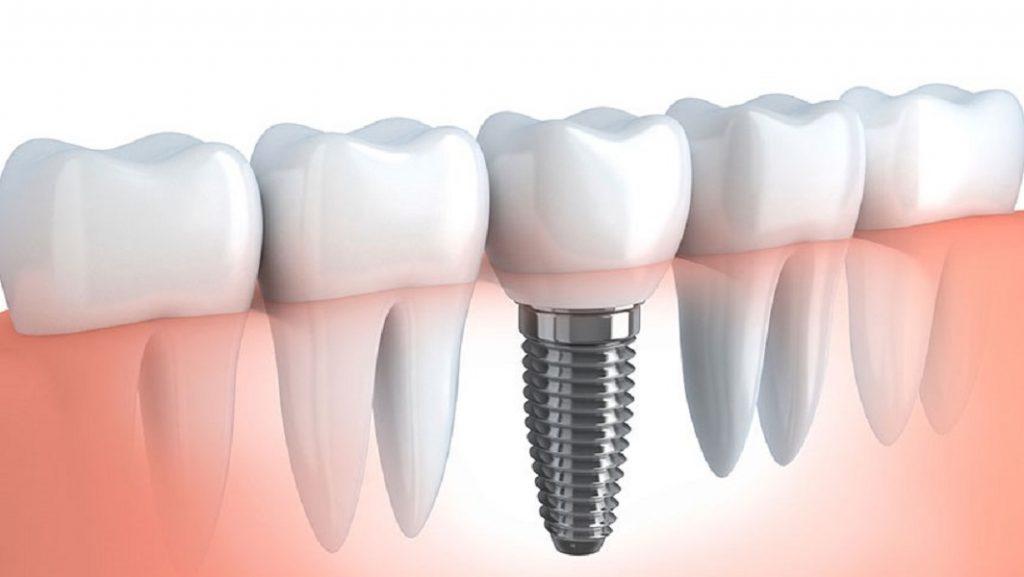 بریج ها و ایمپلنت های دندانی