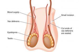 چگونه می توان عمل جراحی وازکتومی را معکوس کرد؟