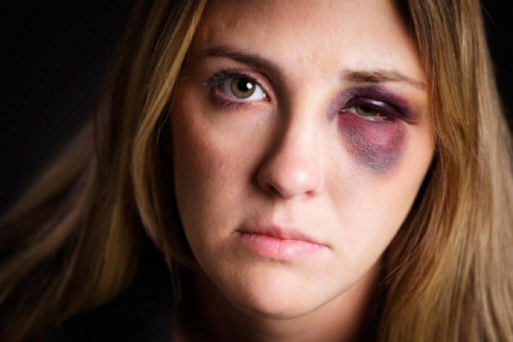 7 راه حل خانگی برای کاهش کبودی زیر چشم