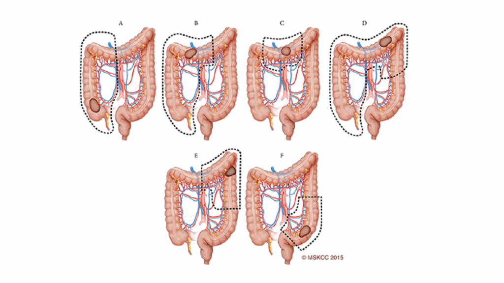 آشنایی با عمل جراحی همی کولکتومی