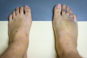 پای بنفش - علت کبود شدن پاها چیست؟