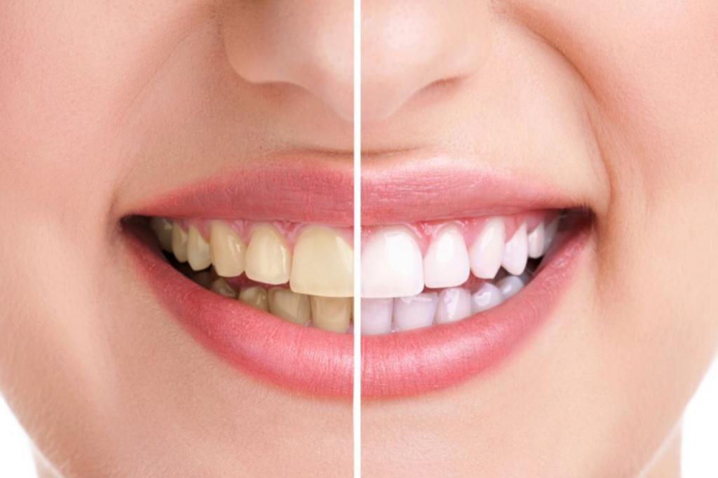 چگونه از شر رنگ زرد دندان ها خلاص شویم؟
