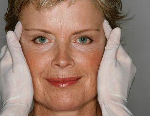 جراحی های زیبایی : تصاویر قبل و بعد از جراحی