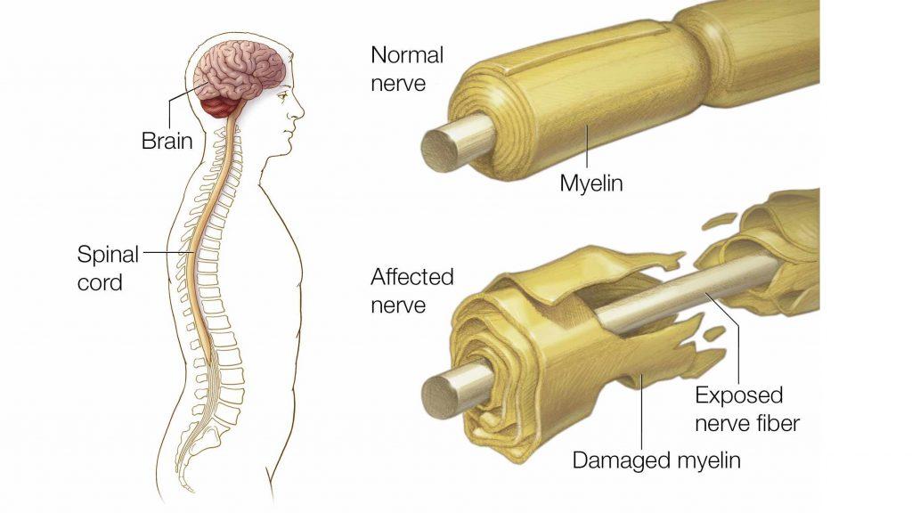 سندروم گیلن باره چیست و چگونه درمان میشود؟