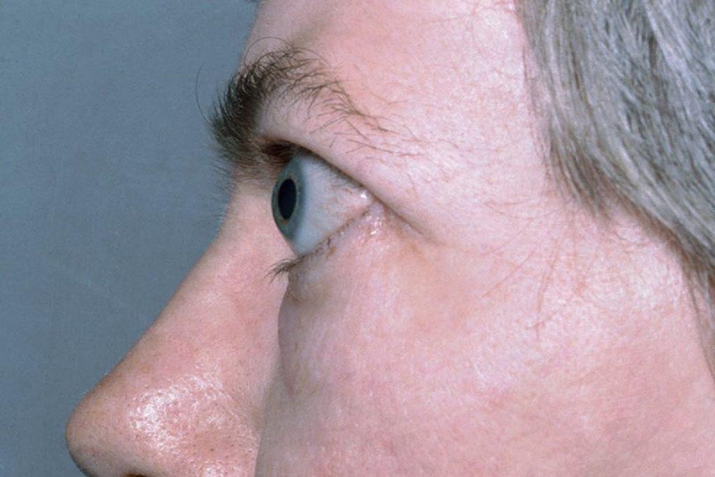 برون چشمی یا اگزوفتالمی چشم