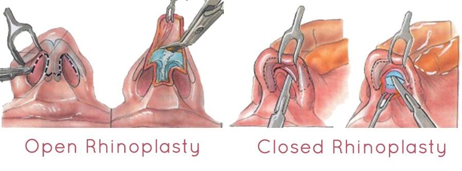 روشهای مختلف عمل رینولاستی یا عمل جراحی بینی گوشتی