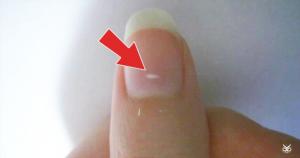 لکه های سفید روی ناخن ها (لکونیشیا)