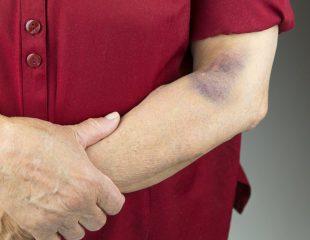 اگر لخته خون در بازو شکل بگیرید چه اتفاقی میافتد؟