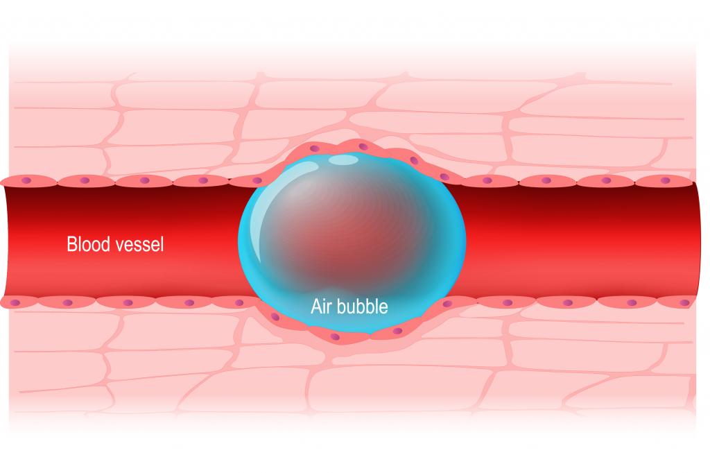 آمبولی هوا عارضه ای که به راحتی آب خوردن شما را میکشد