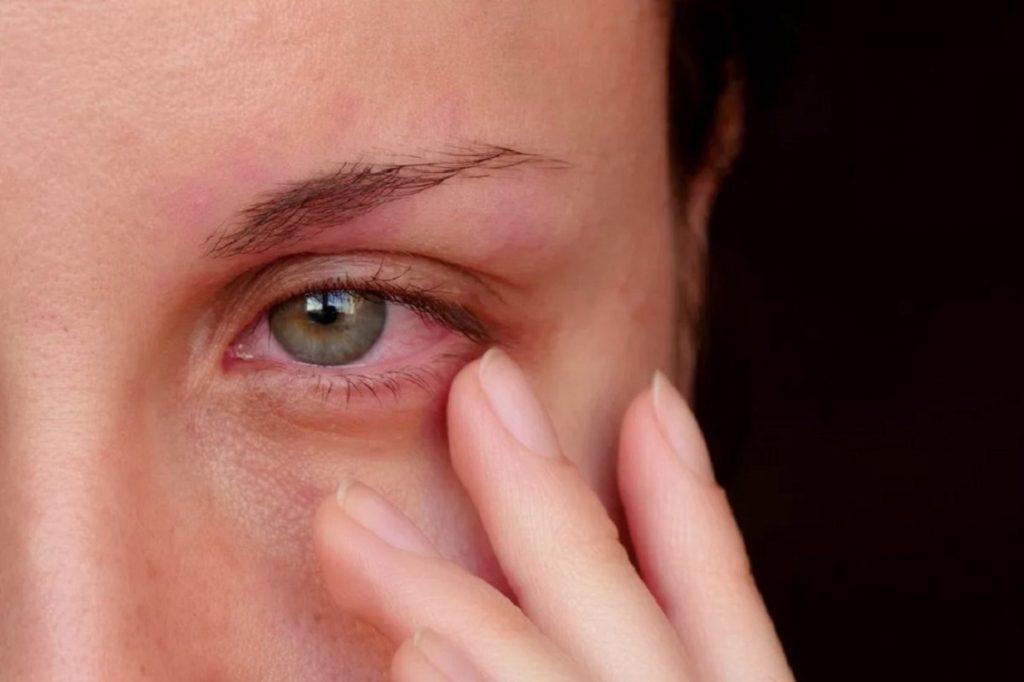چه علل و بیماری هایی باعث قرمز شدن چشم می شوند؟