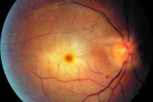 انسداد ورید شبکیه، وقتی که چشم سکته می کند