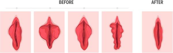 همه چیز درباره عمل جراحی زیبایی واژن یا لابیاپلاستی