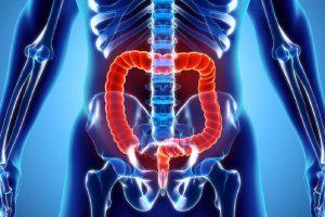 پانکولیت، علایم، تشخیص و درمان یک بیماری گوارشی بد
