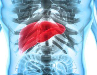 علایم، تشخیص و درمان سرطان طحال