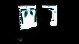 تشخیص کرونت با اشعه ایکس و سی تی اسکن