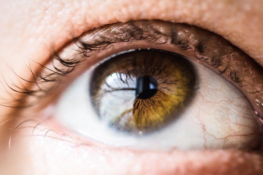 علائم سکته چشمی