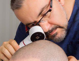 بهترین متخصص کاشت مو در تهران